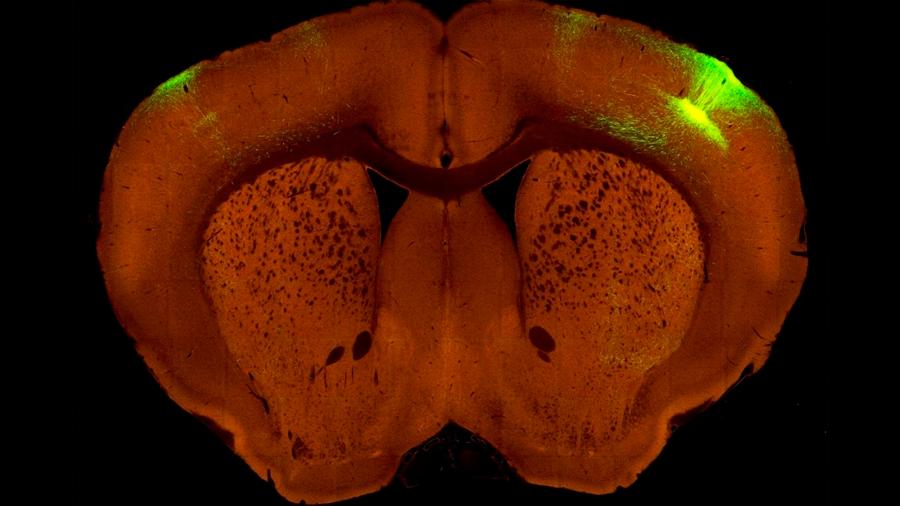 cerebros de insectos